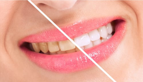 Invigorate Your Smile with Our Professional Teeth-Whitening Treatment