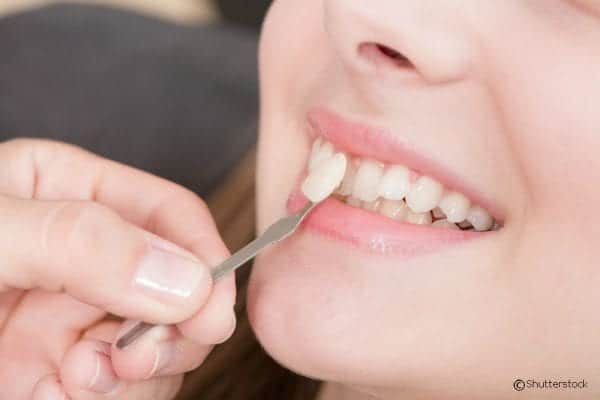 Erase Imperfections in Your Smile With Dental Veneers