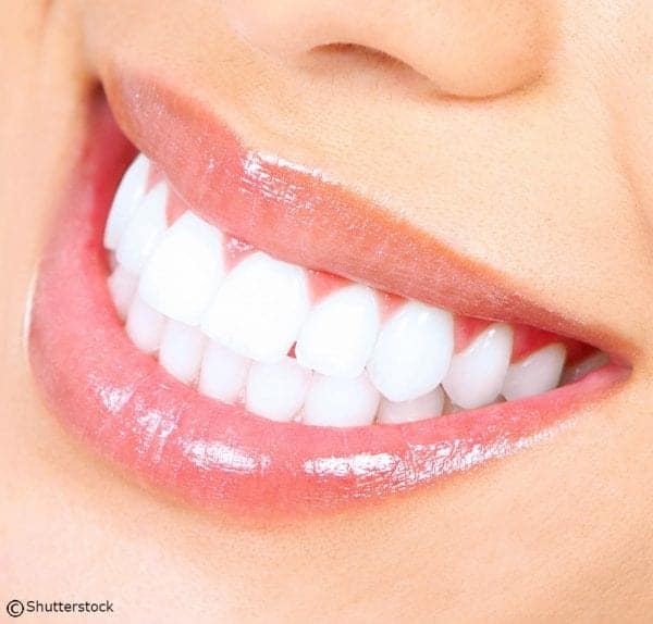 Maintain Your Whitened Smile with Whitening Strips