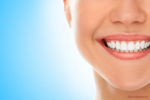 Dental Veneers Can Give You a Flawless Smile