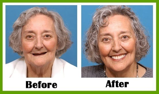 Smile Makeover- ProDental Dallas