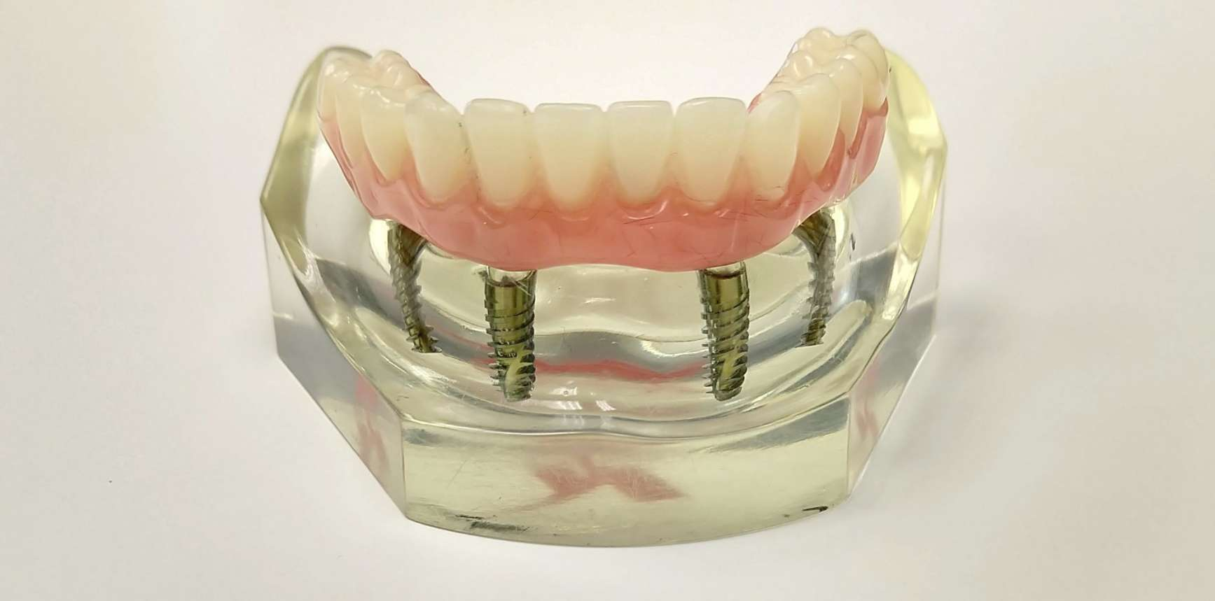 cheapest way to do an all four dental implant - fixed dentures pictures