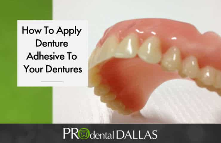 When to Use Denture Adhesive and How to Apply It